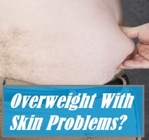 Skin Conditions For Obese People
