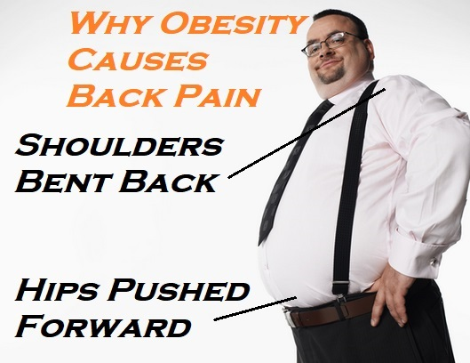 How Does Being Overweight Cause Back Pain